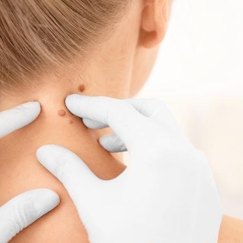 Vírusos szemölcs tünetei és kezelése - Hogyan kell kezelni a nyaki papilloma vírust