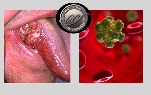 helminthiasis kezelésére szolgáló cikkek