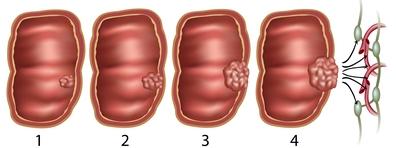 A vastagbélrák tünetei