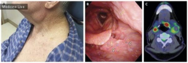 papillomavírus onkogén