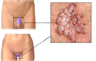 A genitális szemölcsök Mariupol kezelése