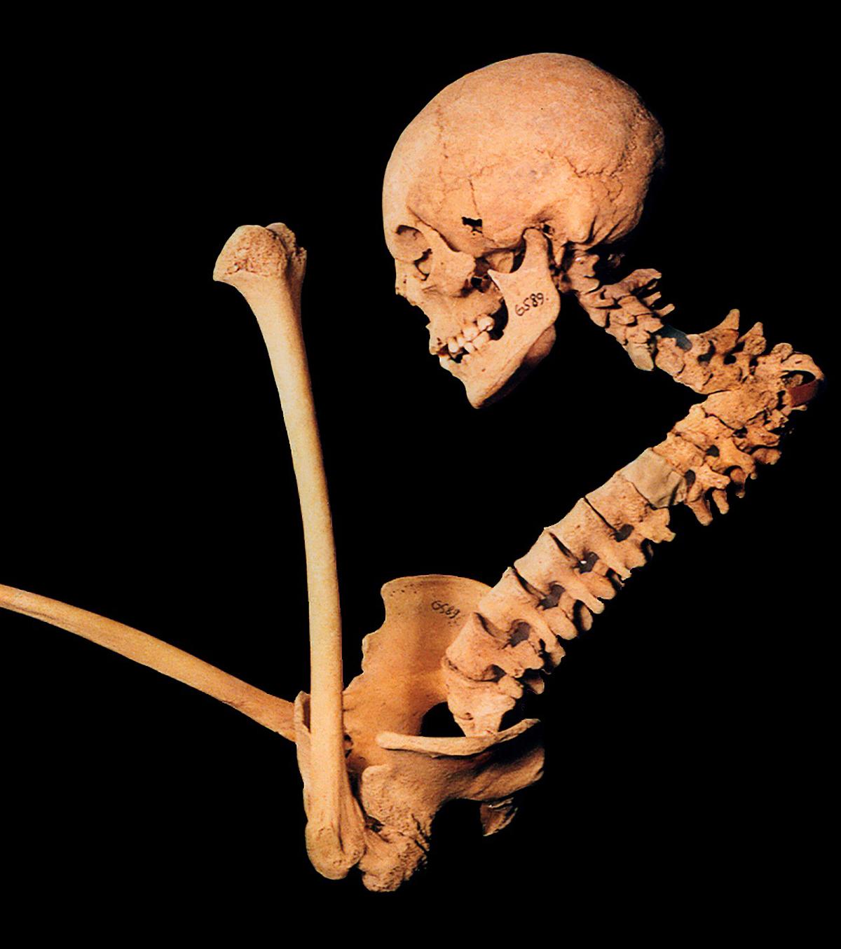 A csontot is pusztítja az ínybetegséget okozó baktérium