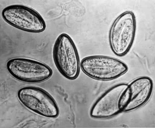 Milyen férgek okoznak allergiát, allergiás reakciót a bélférgekre