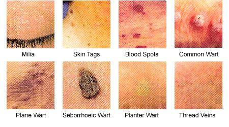 papilloma bőrkezelés