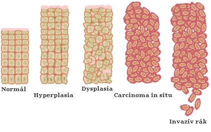 endometrium rákos vérzés mintázata paraziták hasznos természetűek