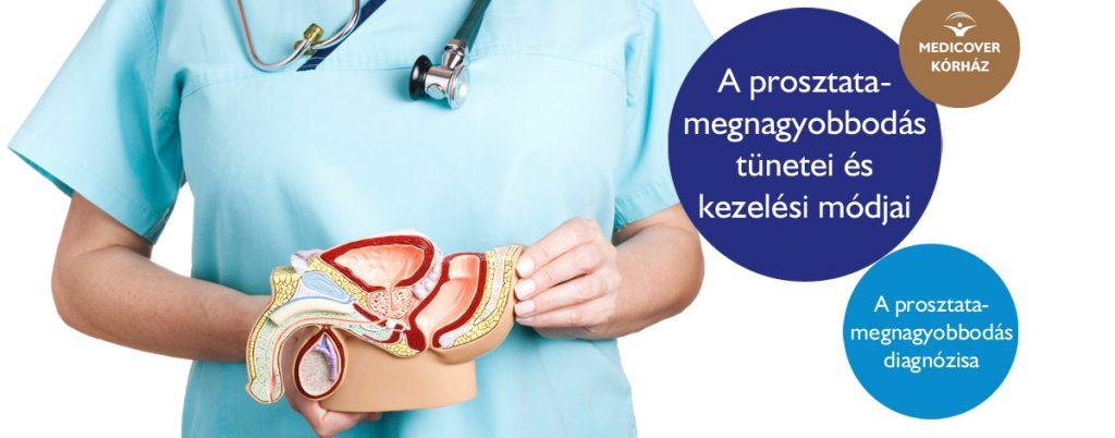 Prosztata problémák kezelése - Urológiai Központ