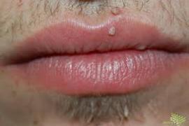 papilloma vírus és férfiak szemölcsök a csiklón