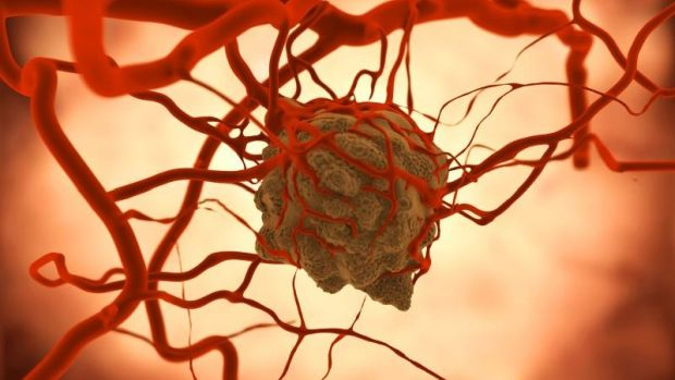 áttétes rák és lymphoma