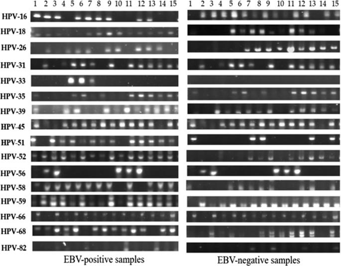 papillomavírus hpv 31 gége papillomatosis orvosi meghatározása