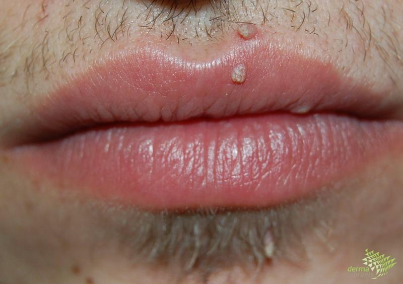 szemölcsök a száj kezelésében