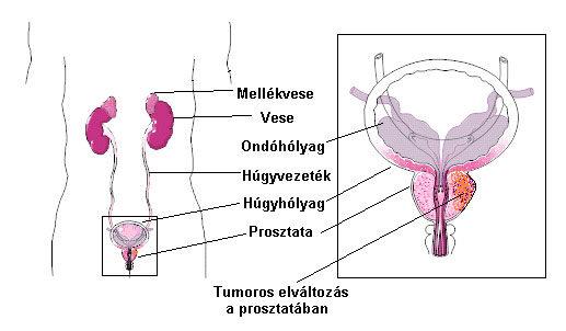 prosztatarák tünetei