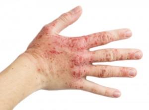 kontakt dermatitis