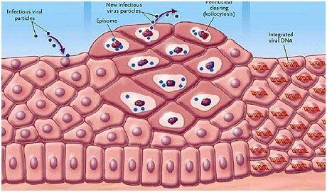 amely hozzájárul a férgek eltávolításához paraziták a testben