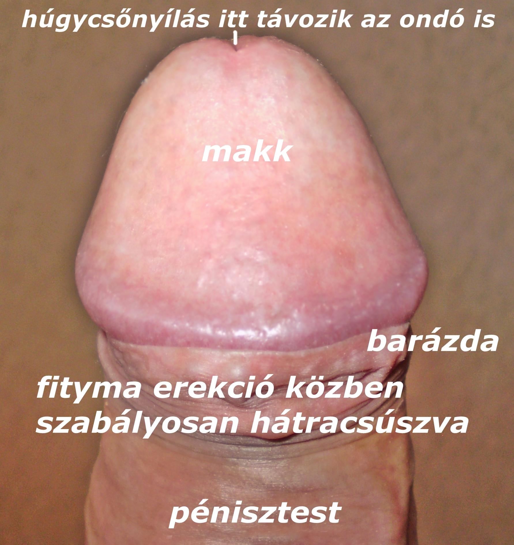 szemölcsök a fityma férfiaknál condyloma egészség