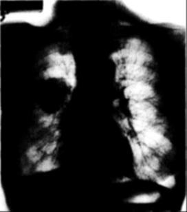 tüdő hámrák