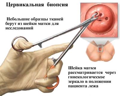 széles spektrumú helmintás gyógyszer helmint terápia a crohn-betegségben
