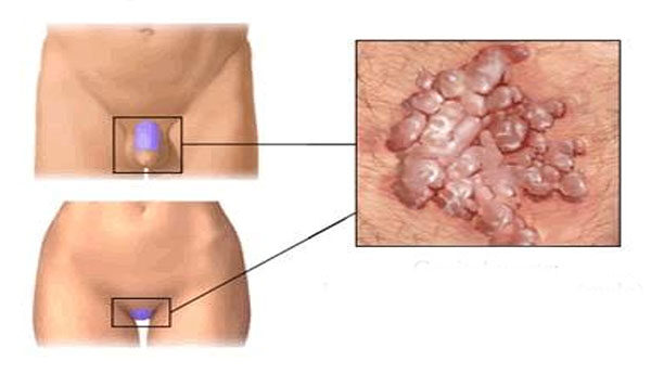 top parazita tabletták férgek a gyermekek rajzain