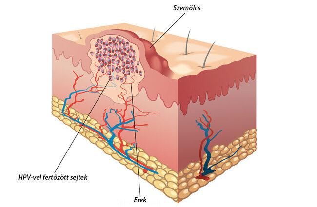 a genitális szemölcsök eltávolítása általános érzéstelenítésben