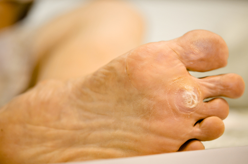 Bőrgyógyászat   Erzsébet Fürdő Gyógyászati És Szűrőközpont
