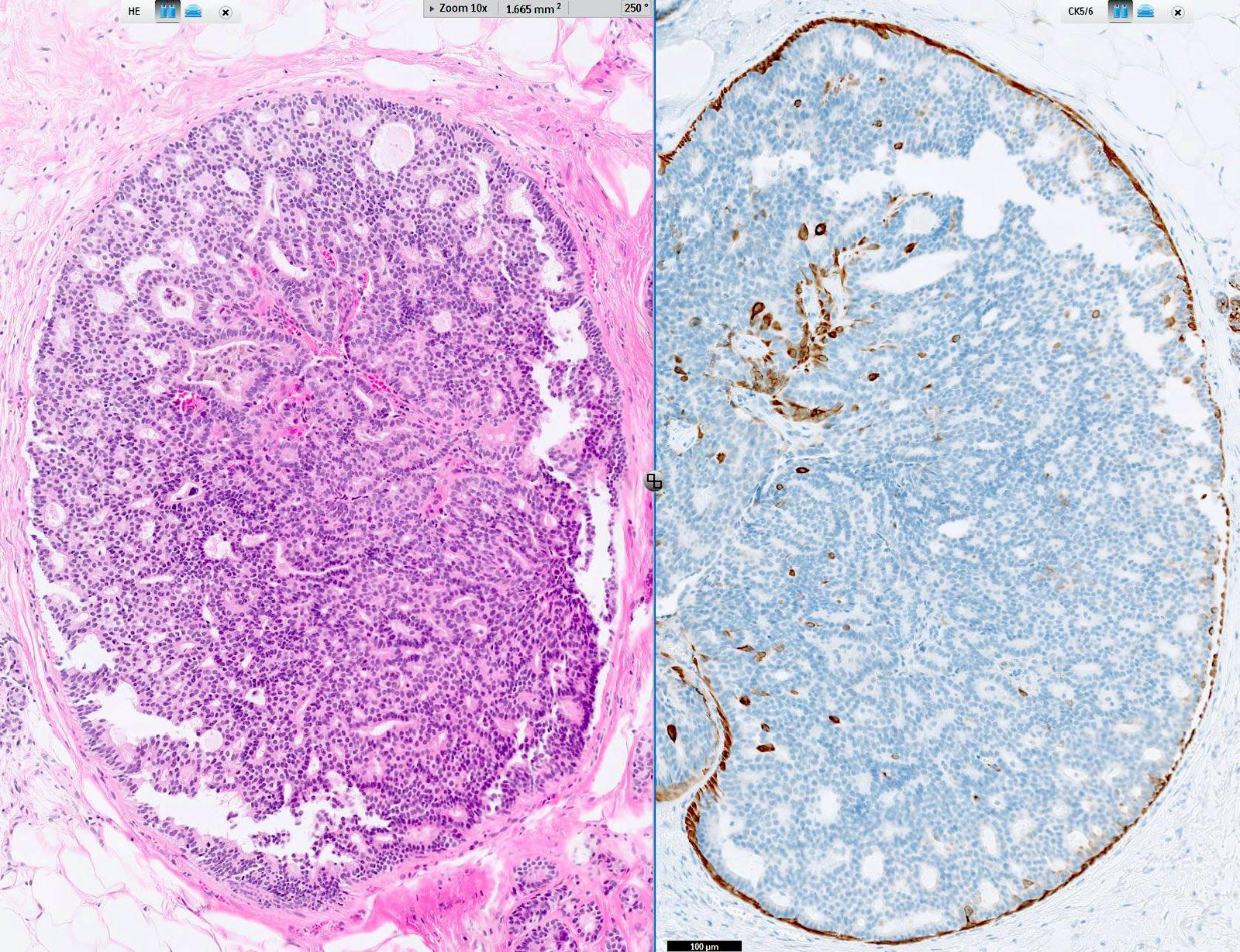 intraductalis papilloma ck5 6