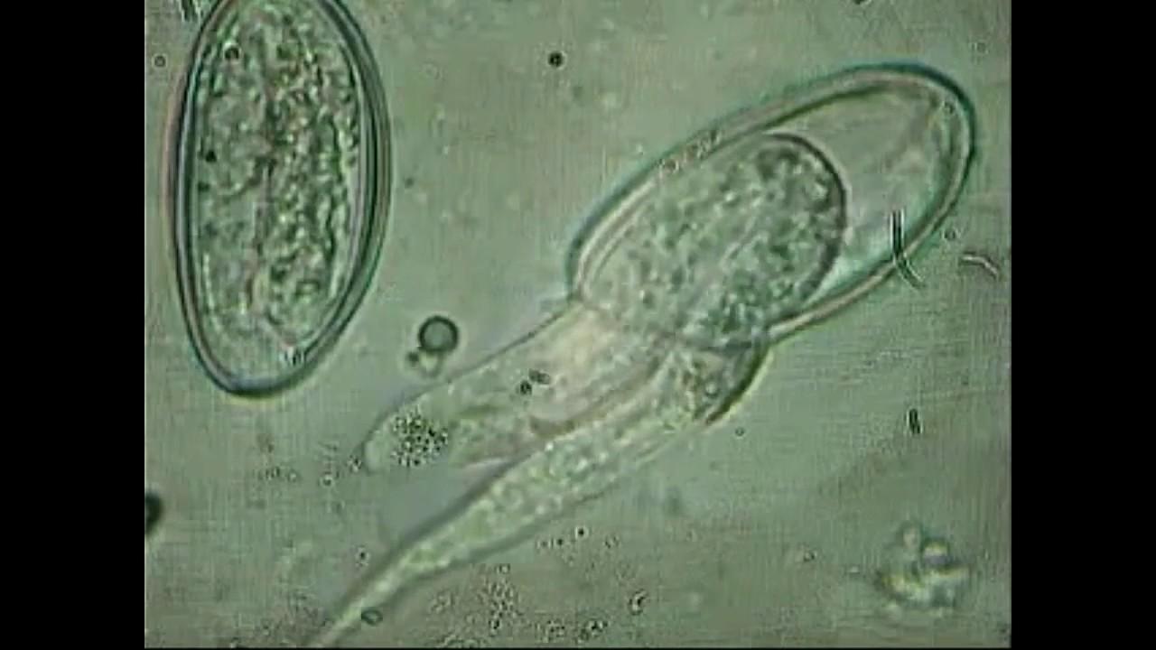 enterobius vermicularis yumurtalari perianalis régió condyloma acuminatum