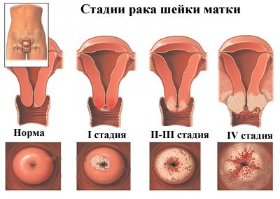 HPV vírus következménye és SILGARD