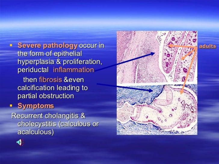Dr. Diag - Choledocholithiasis, Fascioliasis cholangitis
