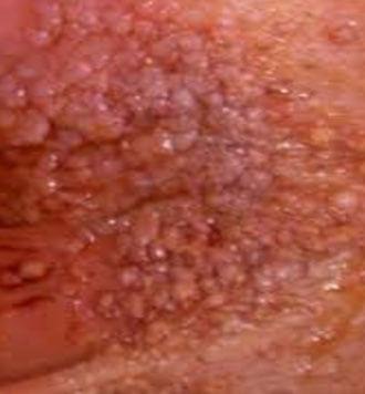 Giardia nell uomo sintomi