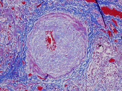 Hogyan kezelik a humán papillomavírust (HPV)?