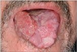Dr. Diag - Carcinoma palati