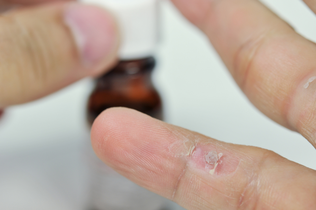 Papillómák kezelése hidrogén-peroxid neumyvakinu-val | PapiSTOP