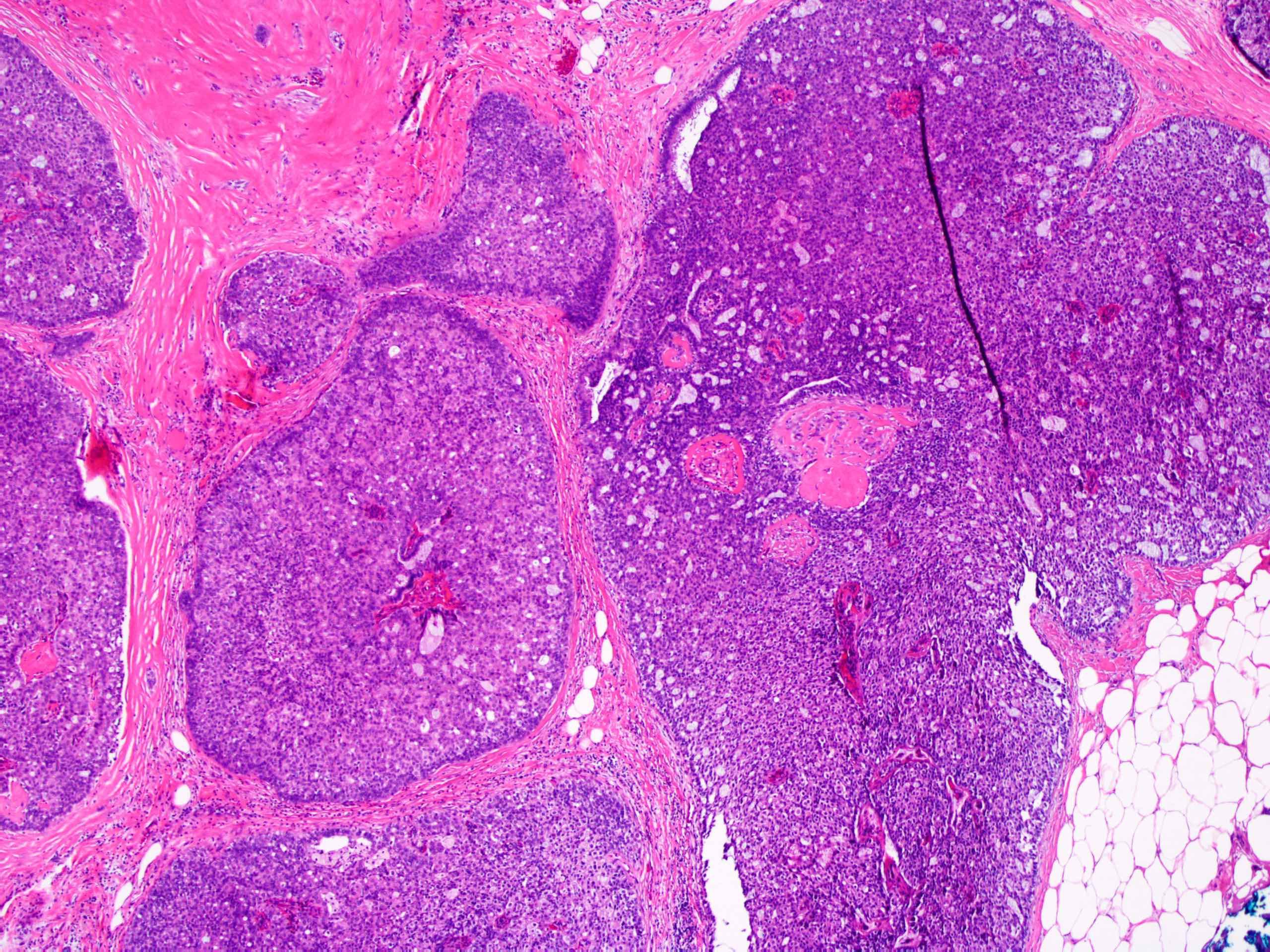 atipikus ductalis papilloma scolex galandféreg