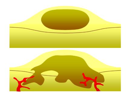 meg lehet gyógyítani a papilloma vírust?