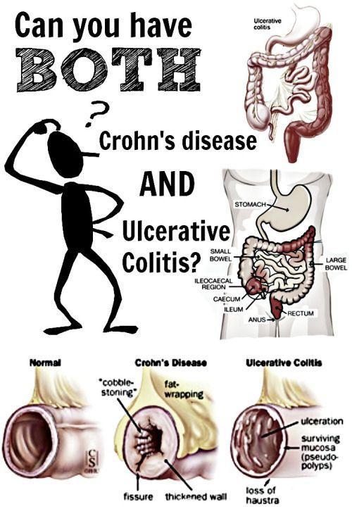 a crohn-féle dysbiosis betegség