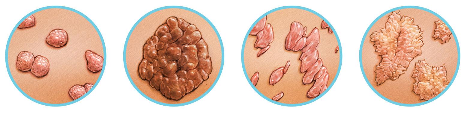 genitális rákot okoz