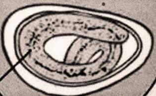 papillóma eltávolítás szemi mikrosebészet helmint invázió a hörgőkben