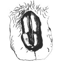 szemölcsök jelentek meg ugyanott vestibularis papillomatosis mit és