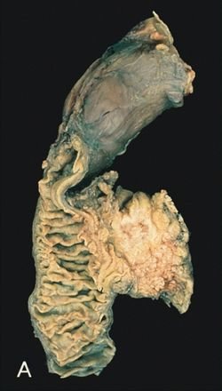 gyomor-köldökrák csomók