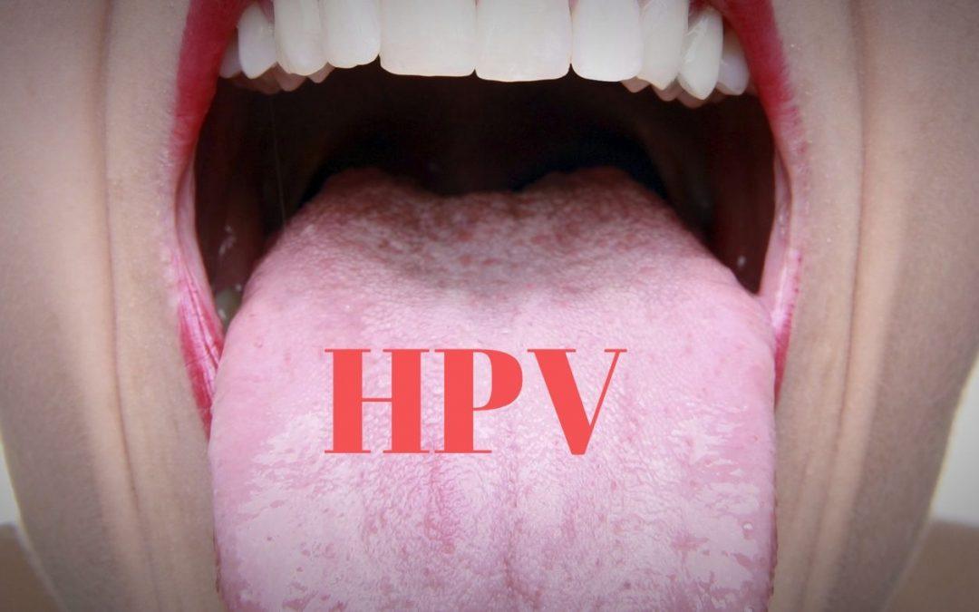 papilloma hpv lingua