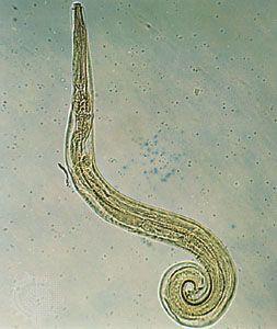 a definíció pinworms Nekem nemi szemölcsöm van, a páromnak van