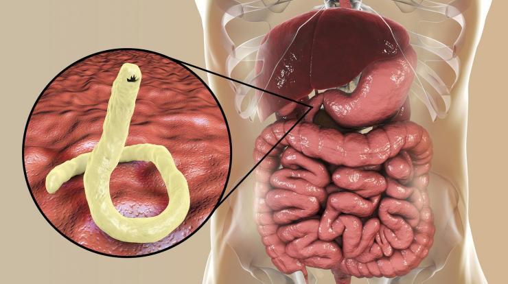 Gyógyszer a paraziták testének tisztításához