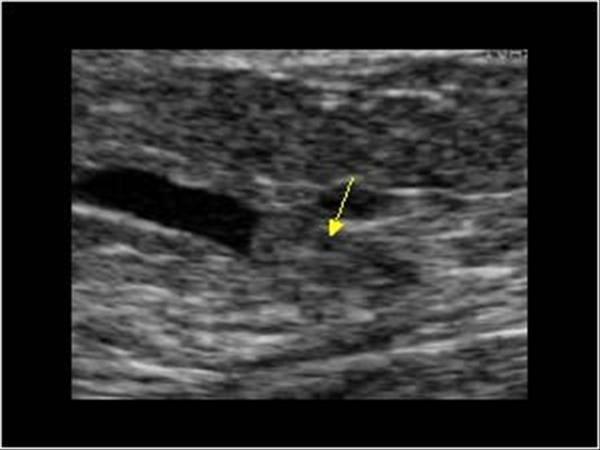 amely a ductalis ectasia és az intraductalis papilloma