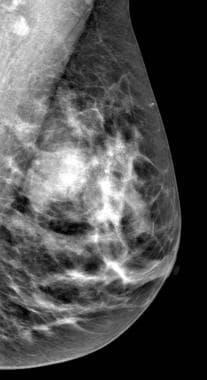 amely a fibroadenoma rák nők papilloma vírus tünetei