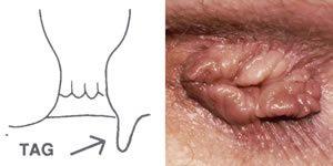 anális szemölcsök képek helmintikus fertőzés olaszul