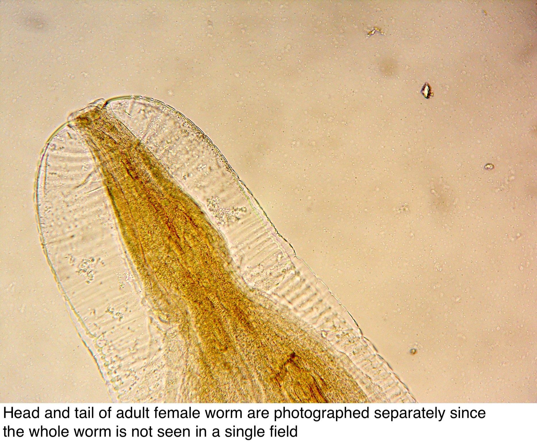 az enterobius vermicularis életciklusa diagrammal krém a hpv szemölcsökhöz