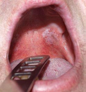 A szájban lévő papilloma fáj papiloma skuamosa adalah