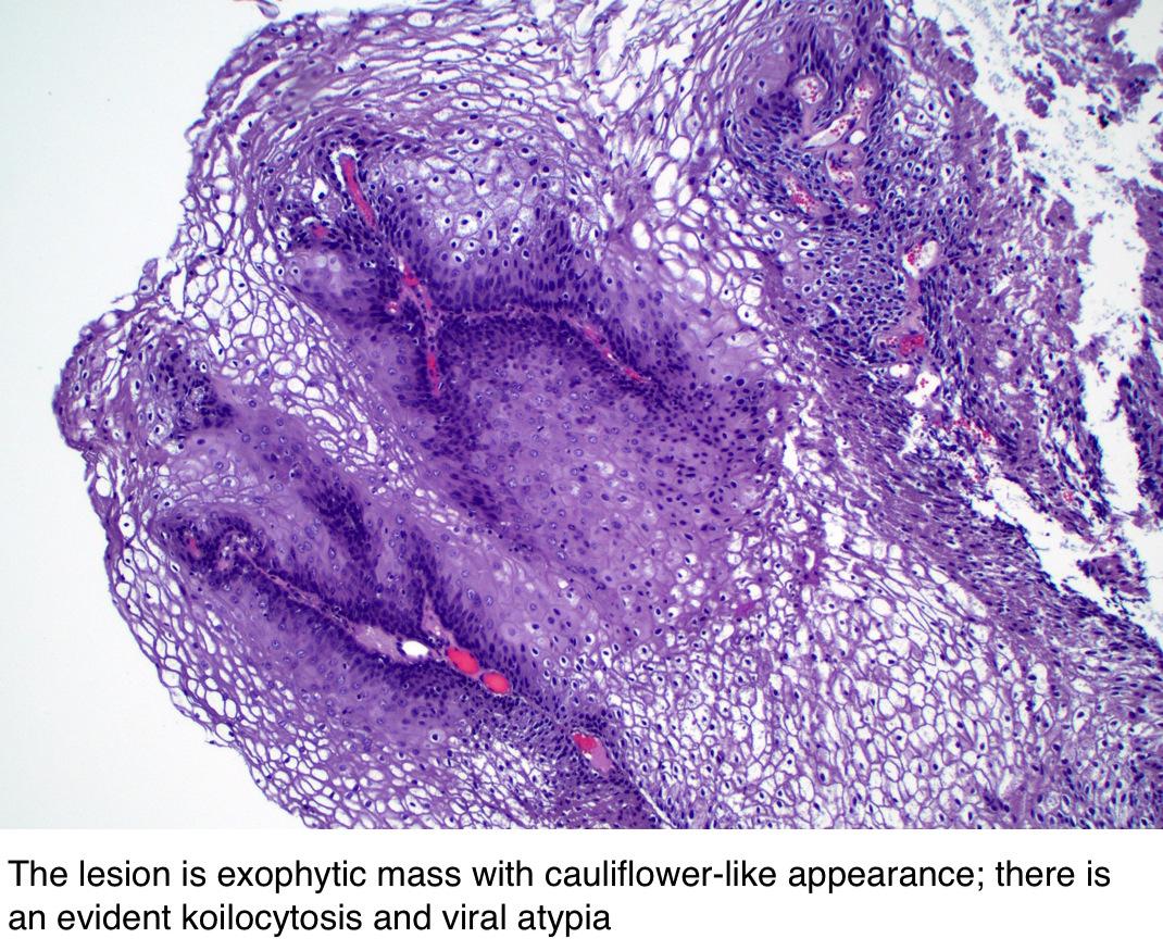 Exophytic condyloma a méhnyak. A méh rosszindulatú daganatai