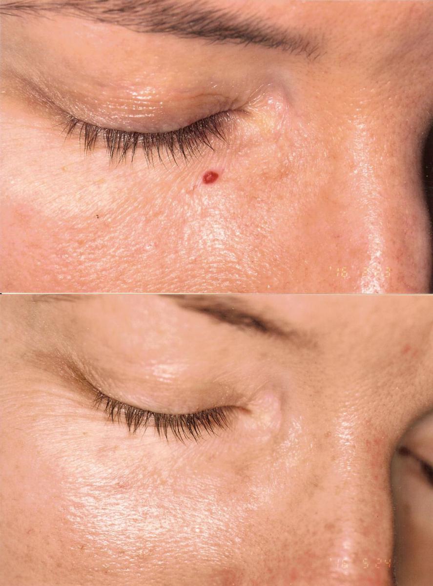Az atópiás dermatitis kezelése csecsemőknél - Allergodermatosis