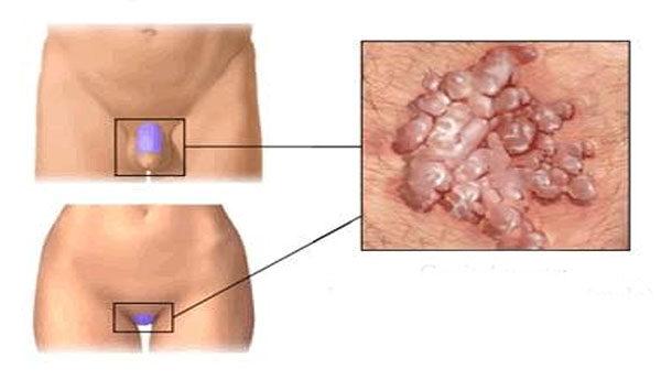 a condyloma testén