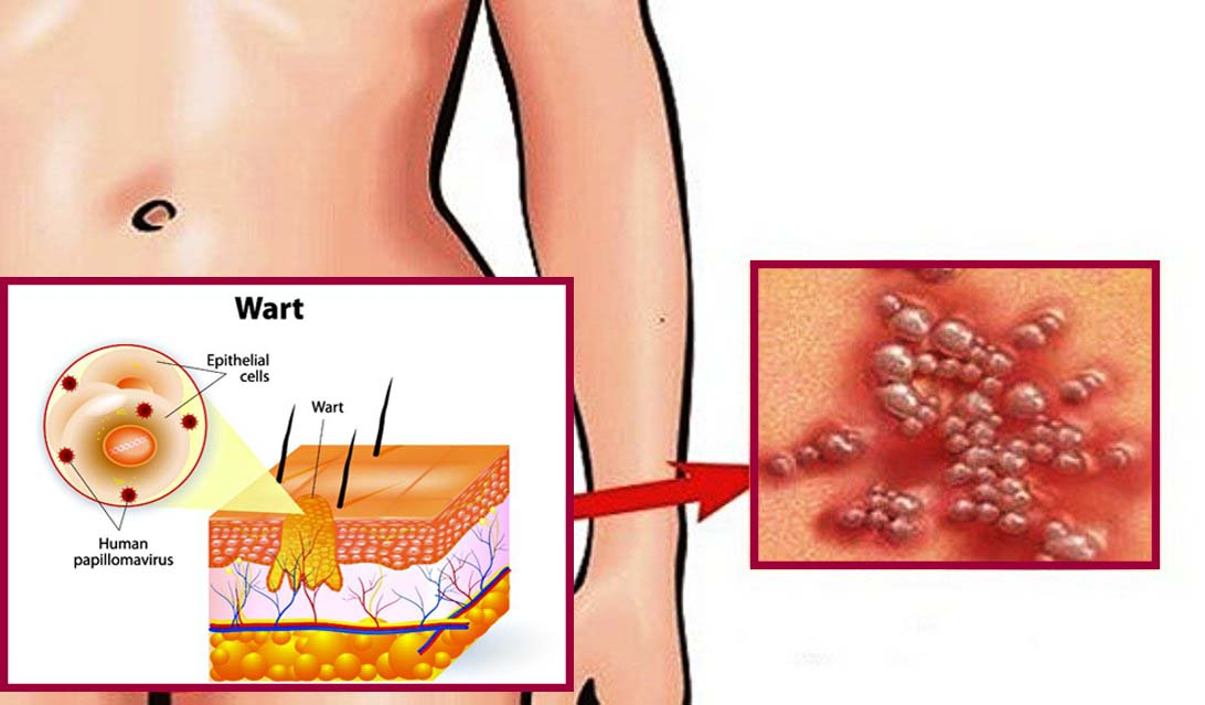 szemölcs a pénisz bőrén tisztító kiegészítő a test méregtelenítéséhez